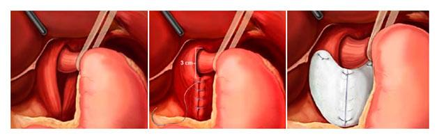 Лечение грыжи желудка хирургическим путем