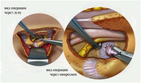 Лечение межпозвоночной грыжи поясничного отдела