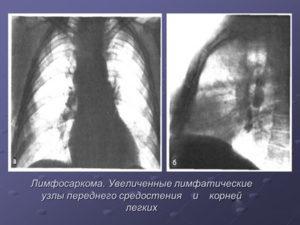 Лимфосаркома грудной клетки