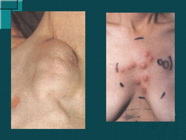 Лимфосаркома у человека