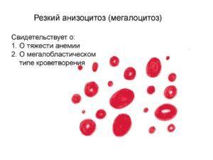 Мегалоцитоз