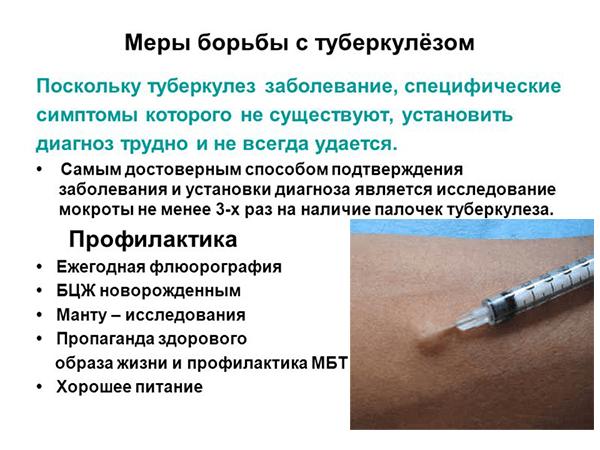 Методы борьбы с туберкулезом