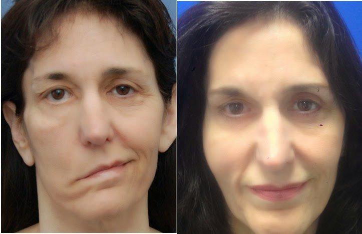 Мышечный паралич до и после восстановления