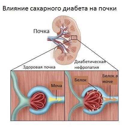 Нефропатия почек при диабете