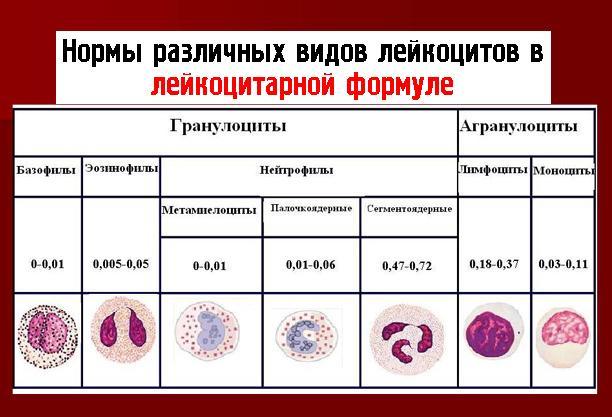 Нормы различных видов лейкоцитов в лейкоцитарной формуле