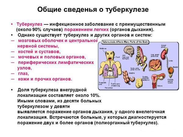 Общие сведения о туберкулезе