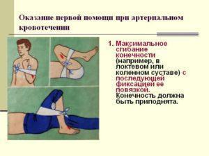 Оказание ПМП при артериальном давлении. Часть 1