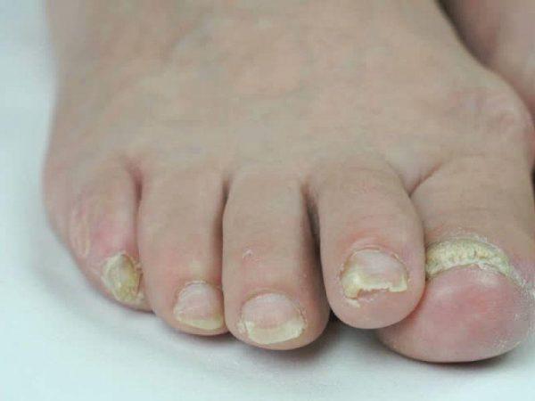 Онихомикоз ногтей
