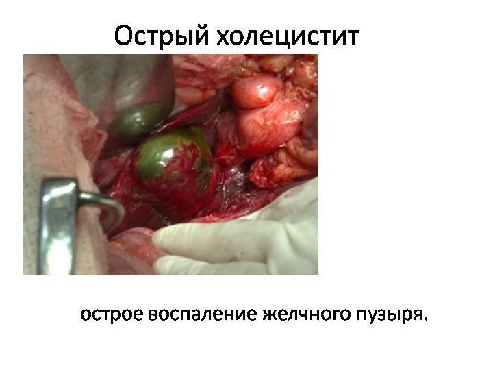 Операция при остром холецистите