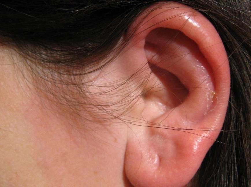 Опухание и краснота ушной раковины