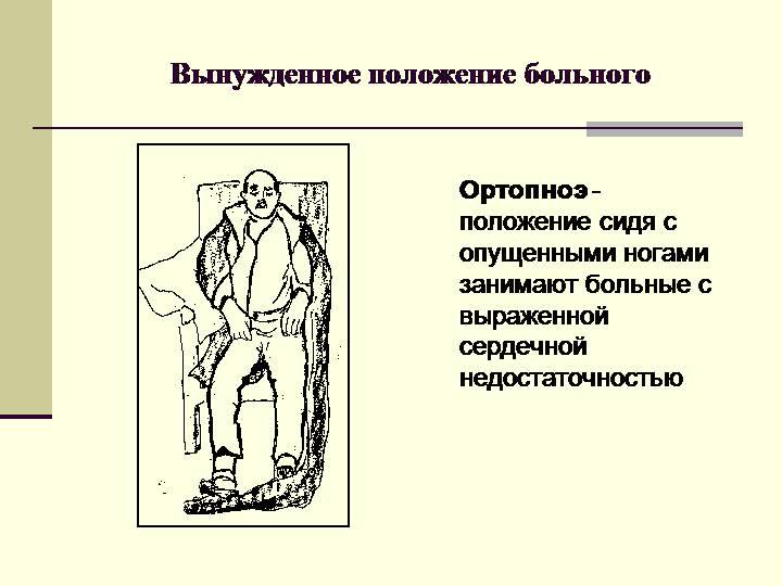 Ортопноэ