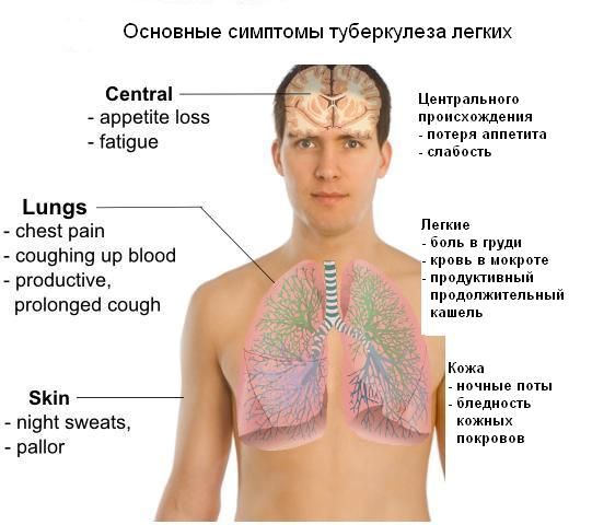 Основные симптомы туберкулеза легких