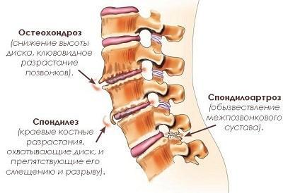 Остеохондроз пояснично-крестцового отдела позвоночника: симптомы