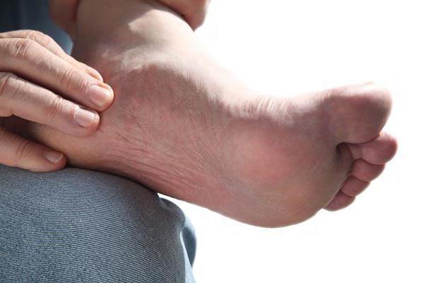 Отложение солей в стопе: лечение и симптомы