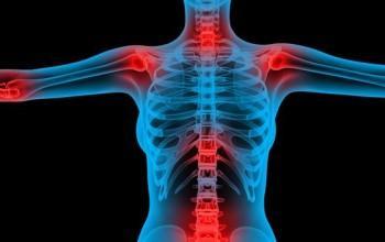 Отложение кальция в плечевом суставе