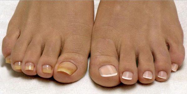 От грибка ногтей на ногах что лучше?