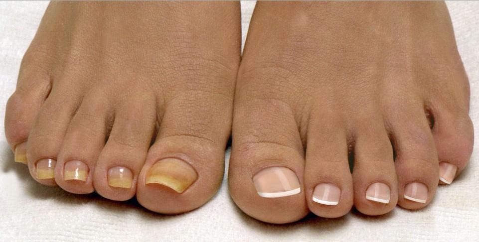 Грибок ногтей лечение в великом новгороде