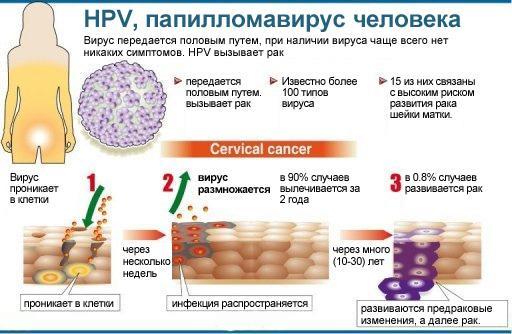 О папилломавирусе человека
