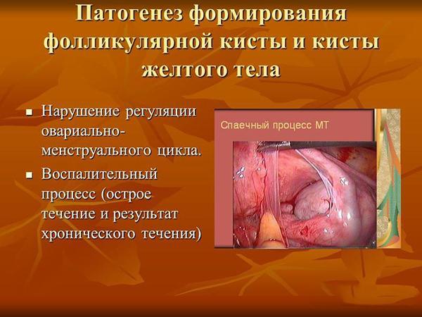 Патогенез формирования фолликулярной кисты