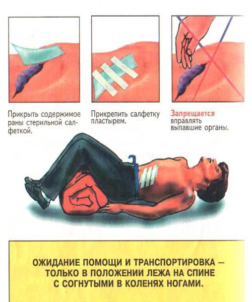 Первая помощь при выпадении внутренних органов