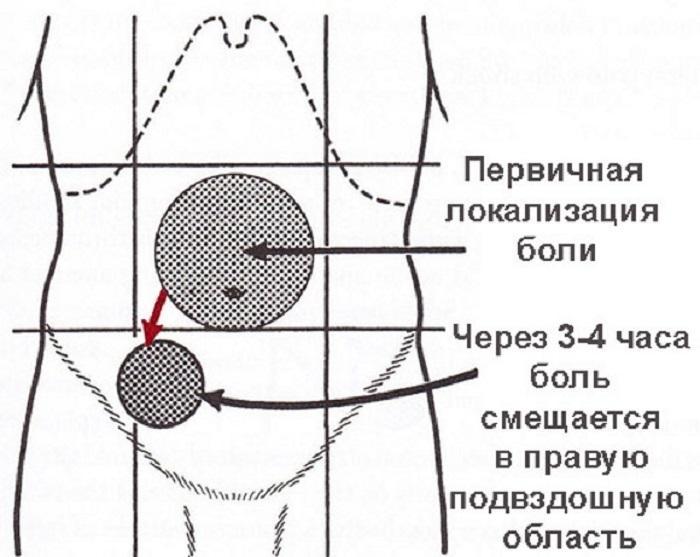 Первичная локализация боли при аппендиците