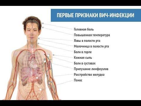 Первые признаки ВИЧ-инфекции