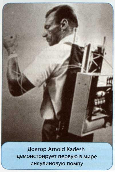 Первый прототип инсулиновой помпы доктора Arnold Kadesh
