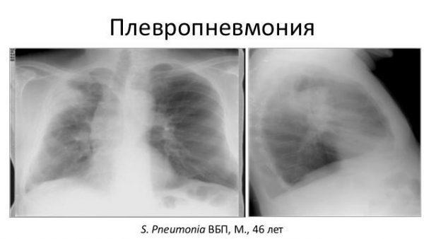 Плевропневмония