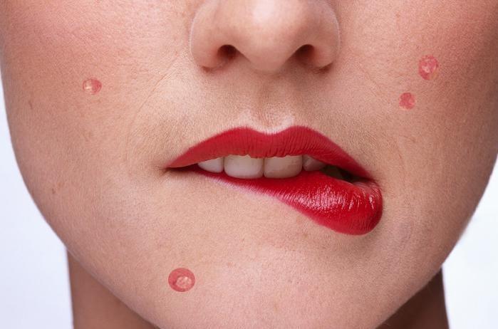 Болючие прыщи на лице причины и средства против болезненных акне