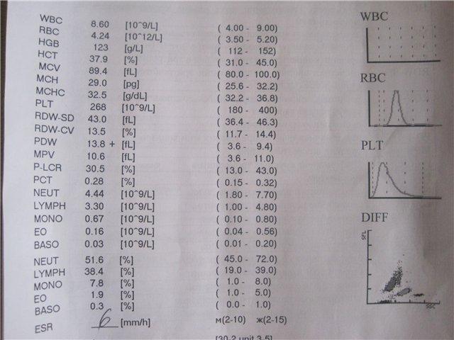 Показатели RDW в анализе крови