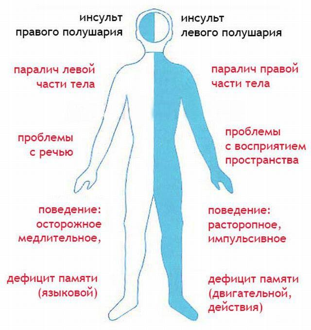 Последствия инсульта