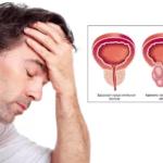 Признаки аденомы простаты у мужчин