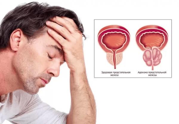 Признаки заболевания аденомы простаты у мужчин