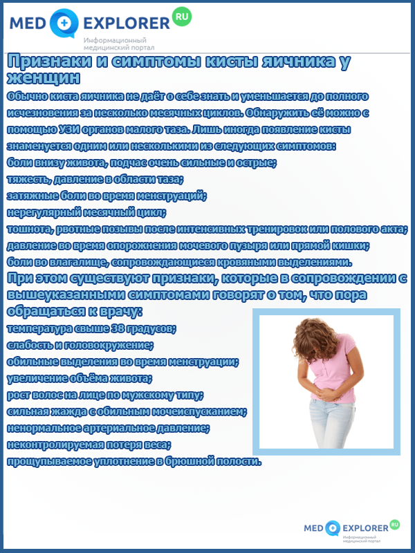 Признаки и симптомы кисты яичника у женщин