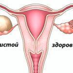 Признаки кисты яичника, симптомы