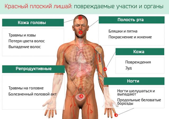 Признаки красного плоского лишая
