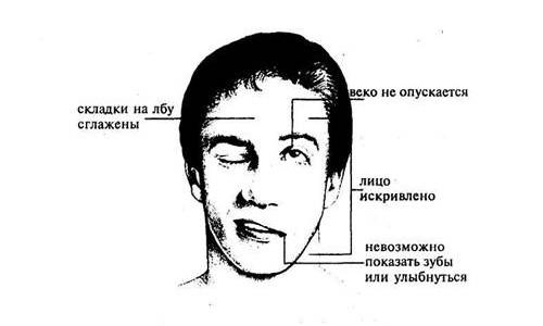 Признаки мышечного паралича