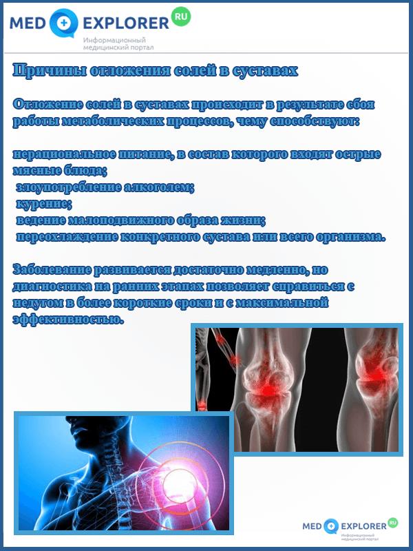 Причины отложения солей в суставах