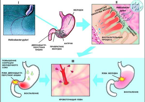Причины язвы желудка и кишечника