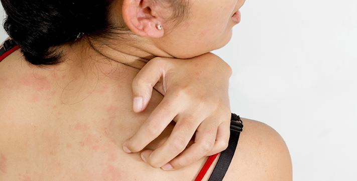 При любых признаках аллергической реакции прием препарата прекращается