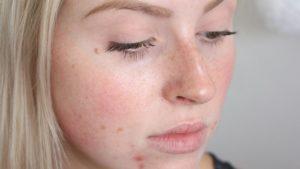 Проблемы с печенью также может стать причиной воспалительных процессов на лице