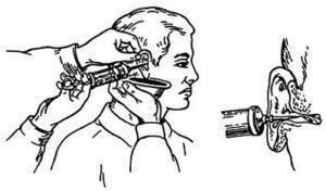Промывание слухового прохода