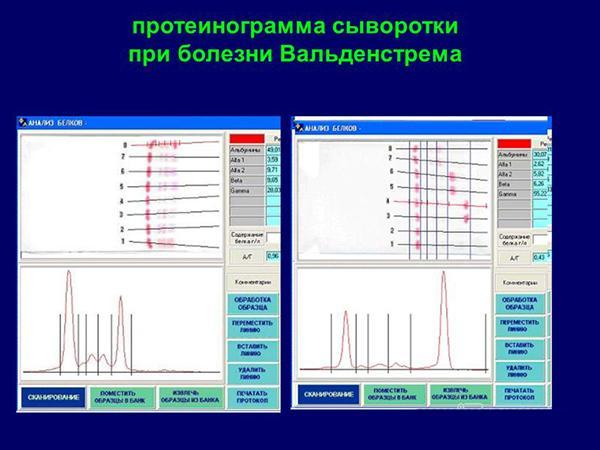 Протеинограмма сыворотки при болезни Вальденстрема