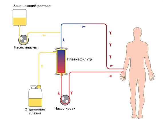 Процесс плазмаферез