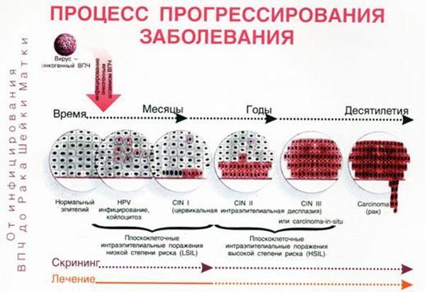 Процесс прогрессирования ВПЧ