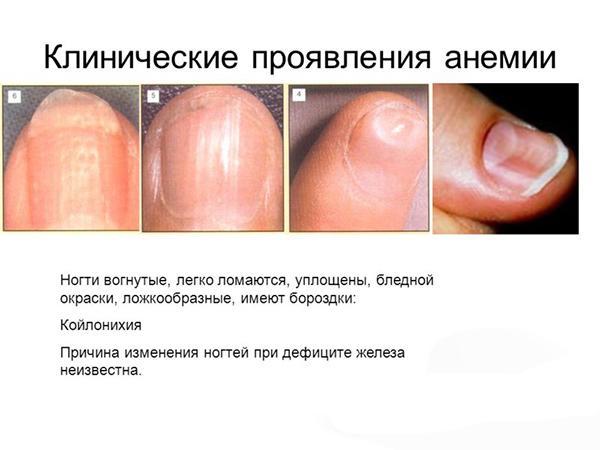 Проявление анемии на ногтях