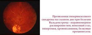 Проявление гипервискозного синдрома на глазном дне при болезни Вальденстрема