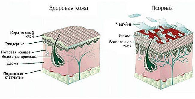 Псориаз изнутри
