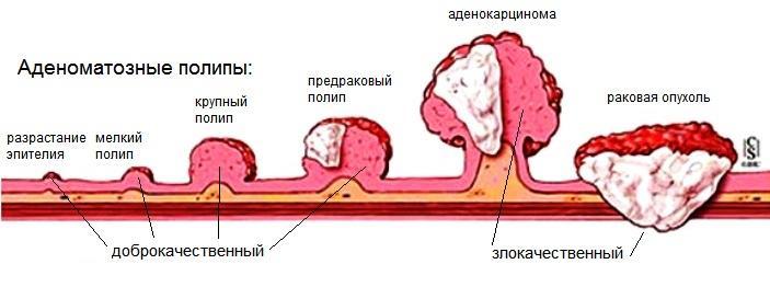 Развитие раковой опухоли