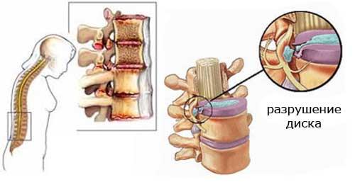 Разрушение диска при остеохондрозе